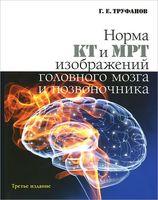 Норма КТ и МРТ изображений головного мозга и позвоночника